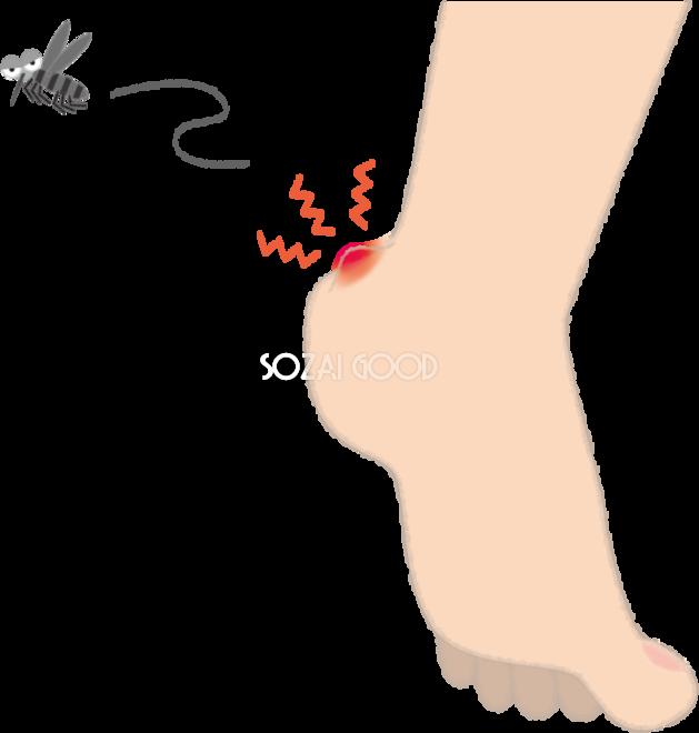 蚊に刺されて赤く腫れるカカトの無料イラスト夏46977 素材good